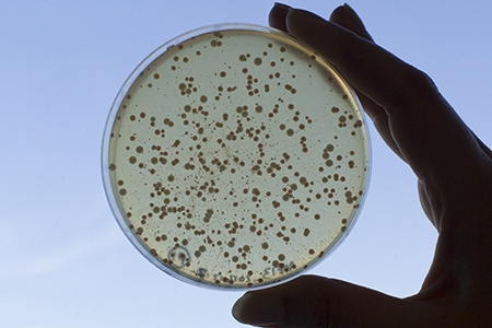 A hand holds up for display a petri dish with microorganisms.